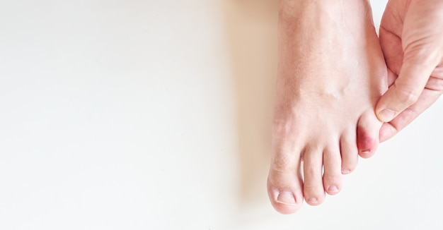 Vue de dessus d'une petite blessure à l'orteil il y a de la lumière naturelle