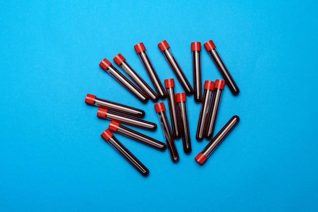 Vue de dessus des tubes à essai de médecine avec des échantillons de sang
