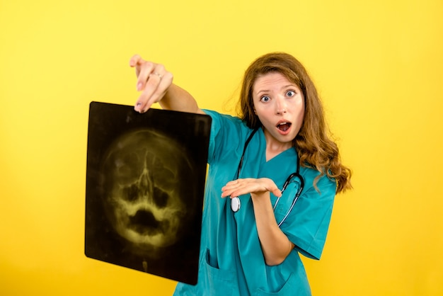 Vue de face femme médecin tenant x-ray sur l'espace jaune