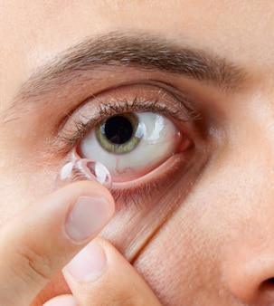 Vue de l'oeil vert d'un homme lors de l'insertion d'un correctif