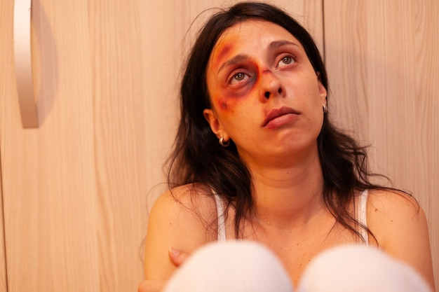 Donna maltrattata con lividi che piange dopo essere stata picchiata brutalmente dal marito. moglie traumatizzata, indifesa, terrorizzata e vulnerabile, coperta di lividi, ferita da un uomo brutale alcolizzato violento