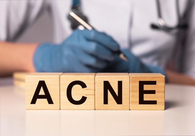 Iscrizione di parola di acne su carta nelle mani del medico