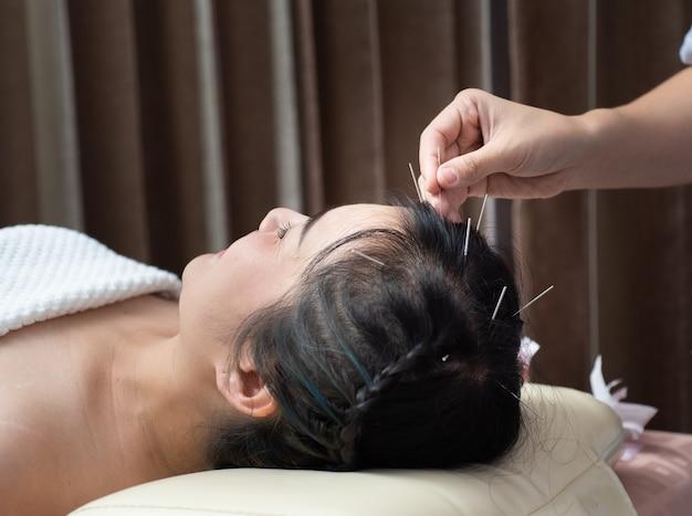 Agopuntura alla testa .hair glabrous