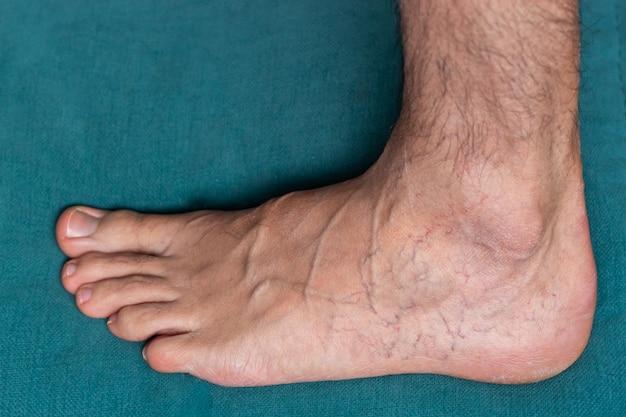 Piede di uomo adulto con vene varicose