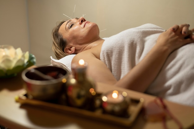 Donna adulta al salone che ha terapia di agopuntura