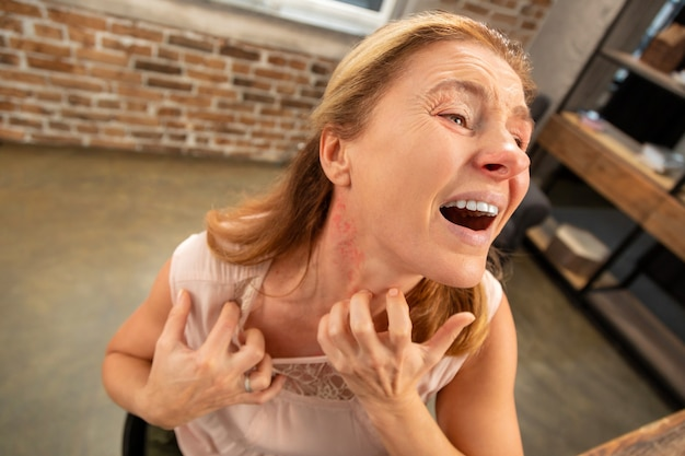 Donna dai capelli biondi invecchiata che ha eruzione cutanea e arrossamento sul collo dopo una forte allergia