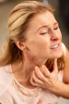 Donna dai capelli biondi matura invecchiata che si gratta il collo mentre ha eruzioni cutanee e febbre