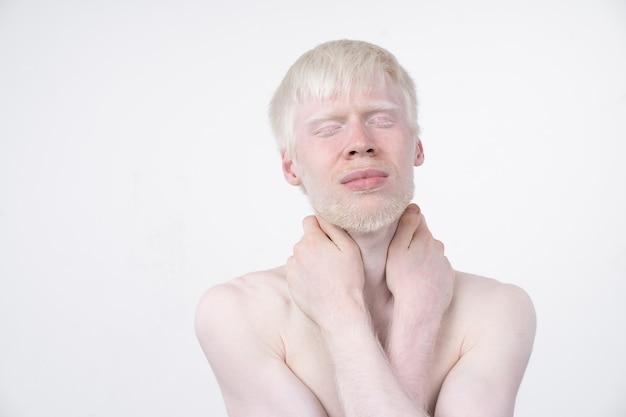 L'uomo albino di albinismo in studio vestito t-shirt isolato su uno sfondo bianco. deviazioni anormali. aspetto insolito. anormalità della pelle