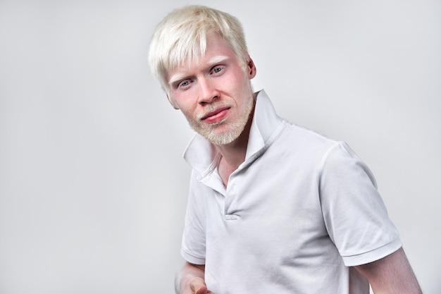 L'uomo albino di albinismo in studio vestito t-shirt isolato su uno sfondo bianco. deviazioni anormali. aspetto insolito