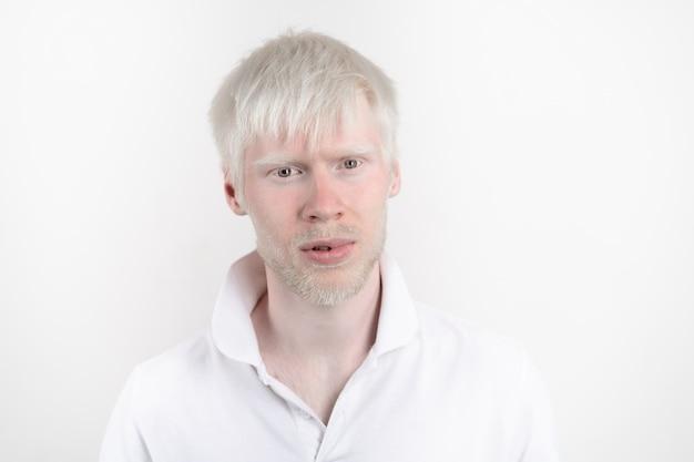 Albinismo uomo albino