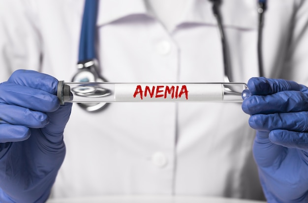 Parola di anemia sulla provetta da laboratorio di vetro in mano del medico