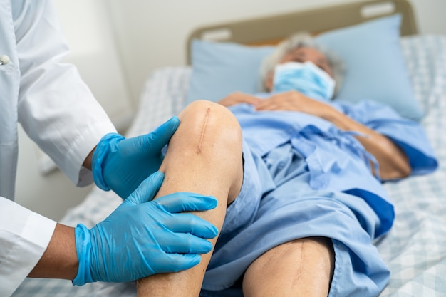 Il paziente anziano asiatico mostra le sue cicatrici sostituzione chirurgica totale dell'articolazione del ginocchio