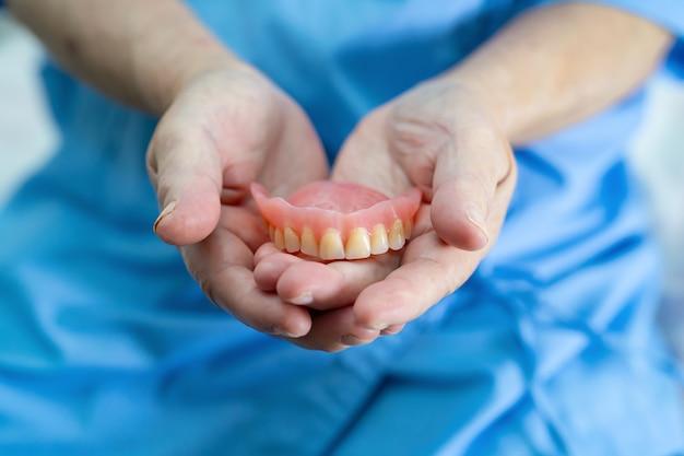 Protesi dentaria asiatica della tenuta del paziente della donna maggiore in ospedale.