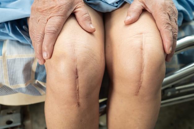 Il paziente anziano asiatico della donna mostra la sua sostituzione chirurgica dell'articolazione totale del ginocchio delle cicatrici.