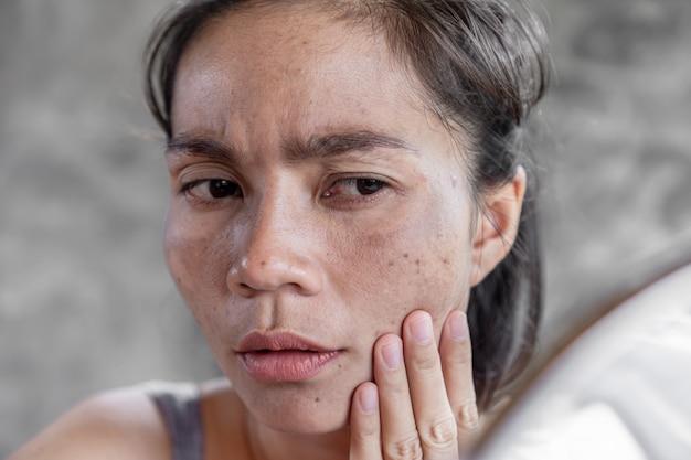 Donna asiatica che ha la pelle punto scuro, lentiggine dalla luce uv