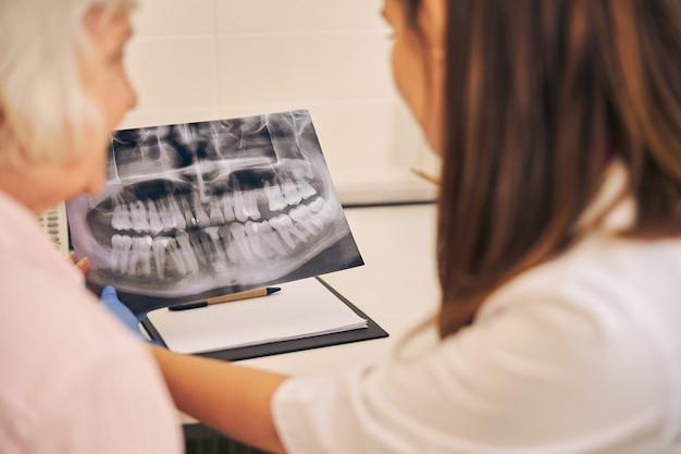 Vista posteriore del medico professionista che mostra l'immagine di denti sani per una paziente anziana in clinica odontoiatrica