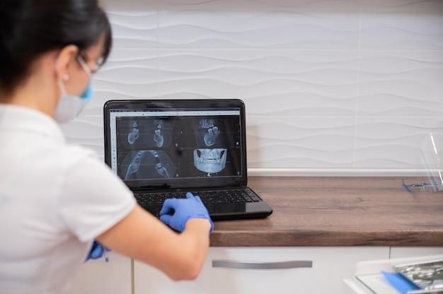 Una vista posteriore di un dentista della giovane donna che lavora al computer portatile e che esamina i raggi x del paziente