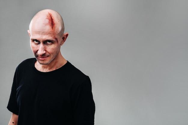 Un uomo malconcio con una maglietta nera su sfondo grigio, che sembra un drogato e un ubriaco.