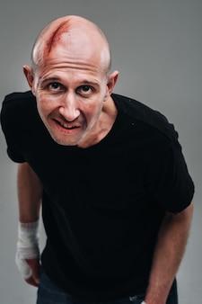 Un uomo malconcio con una maglietta nera che sembra un tossicodipendente e un ubriacone si erge su uno sfondo grigio.