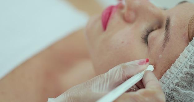 L'estetista segna con una matita i punti di iniezione sul viso della donna. trattamento cosmetico.