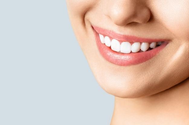 Bel sorriso femminile dopo la procedura di sbiancamento dei denti