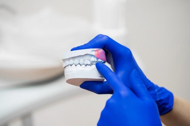 Bella ragazza medico professionista dentista ortodontista mostra un calco in gesso della mascella.
