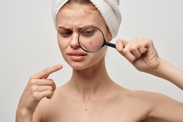 Bella donna con un asciugamano sulla mia testa problemi di pelle primo piano