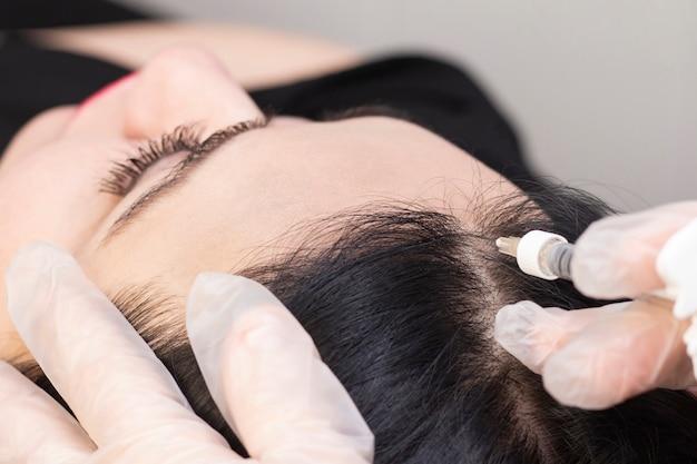 Nella clinica di bellezza iniettano una siringa nelle radici nere dei capelli per la rigenerazione. stimolare la crescita dei capelli.