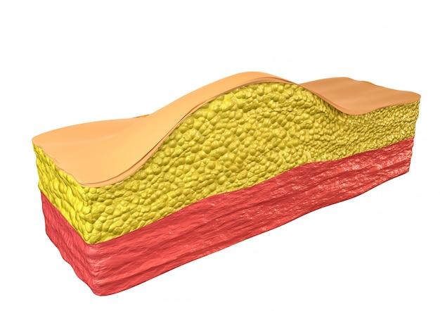 Un tumore benigno composto da cellule del tessuto adiposo