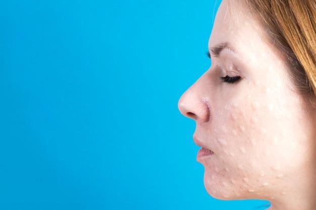 Biorivitalizzazione della pelle reale. tracce di iniezioni di biorivitalizzazione sul viso di una donna su blu