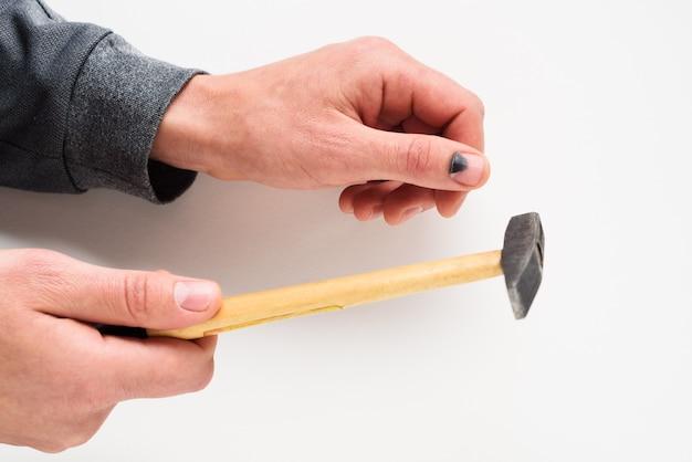 Unghia annerita dopo essere stata colpita con un martello. lesione al pollice