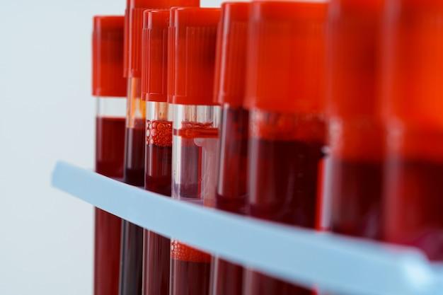 Fine dell'attrezzatura medica dai tubi del campione di sangue su