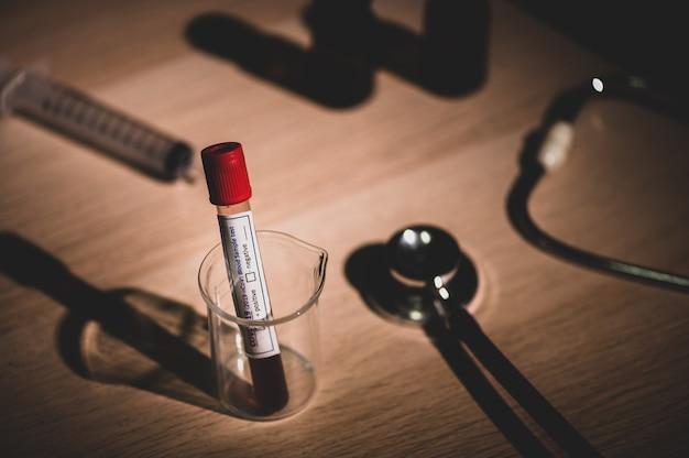 Risultato dell'esame del sangue per il nuovo coronavirus a rapida diffusione