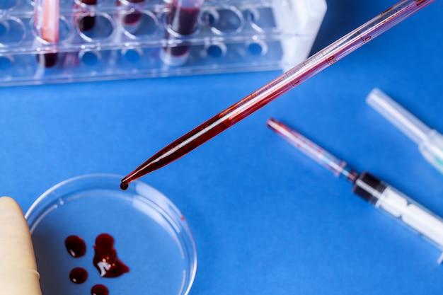 Provetta dell'analisi del sangue in un laboratorio dell'ospedale di analisi medica