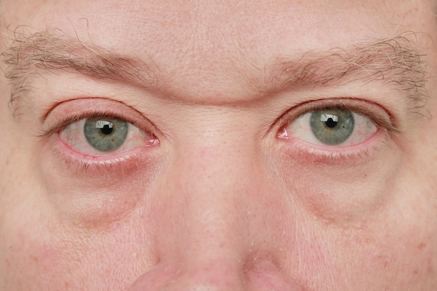 Occhi azzurri dell'uomo che guarda l'obbiettivo con piccole vene e sopracciglia affollate