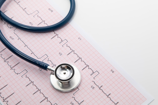Stetoscopio blu su carta per grafici dell'elettrocardiogramma (ecg). isolato di scansione del grafico del cuore di ecg su bianco. assicurazione sanitaria e background medico