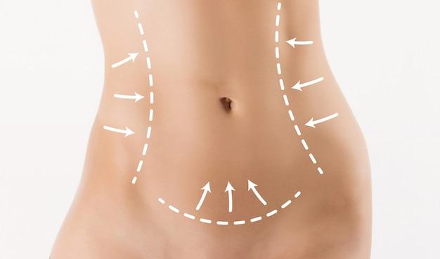 Correzione del corpo con l'aiuto della chirurgia plastica su sfondo bianco. pancia della donna segnata per chirurgia estetica o liposuzione