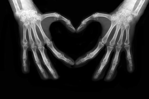 Ossa delle mani che fanno il segno dell'amore