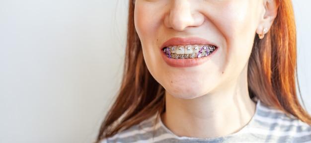 Bretelle nella bocca sorridente di una ragazza