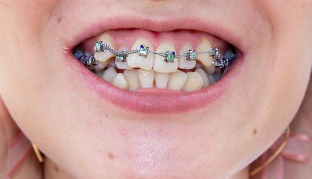 Le parentesi graffe sulla mascella superiore si trovano vicino, puoi vedere che i denti crescono storti e hanno bisogno di parentesi graffe per allineare i denti.