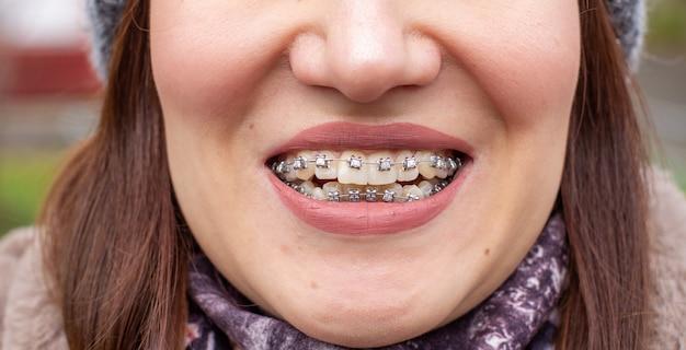 Sistema brasket nella bocca sorridente di una ragazza, fotografia macro di denti, primo piano delle labbra
