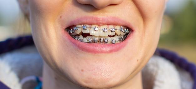 Sistema brasket in bocca sorridente, denti foto macro, labbra close-up, colpo macro.