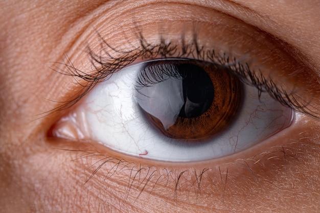 Occhio umano marrone ad alto ingrandimento che guarda dritto davanti a sé