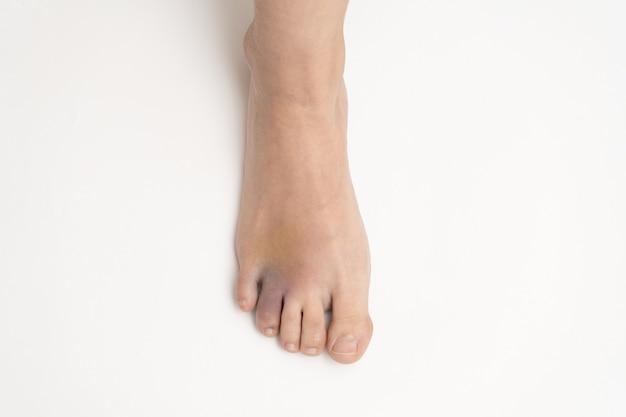 Livido sul piede. ematoma dopo un infortunio alla punta dell'anello del piede sinistro.