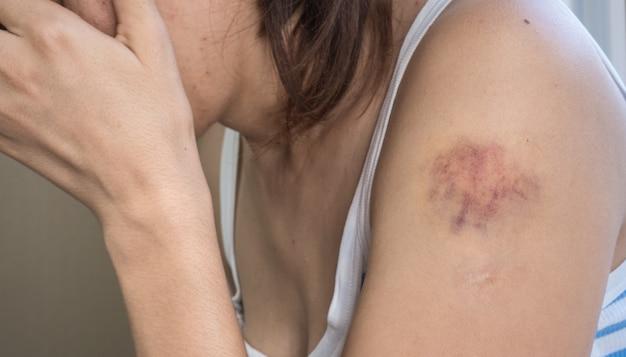 Lividi sulla mano di una donna con i capelli scuri in una maglietta a righe bianco-blu da vicino