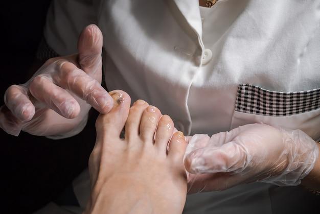 Lividi sulle dita dei piedi. terapia del piede.