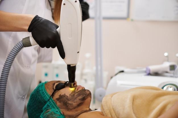 Peeling facciale al carbonio con laser. cosmetologia hardware.