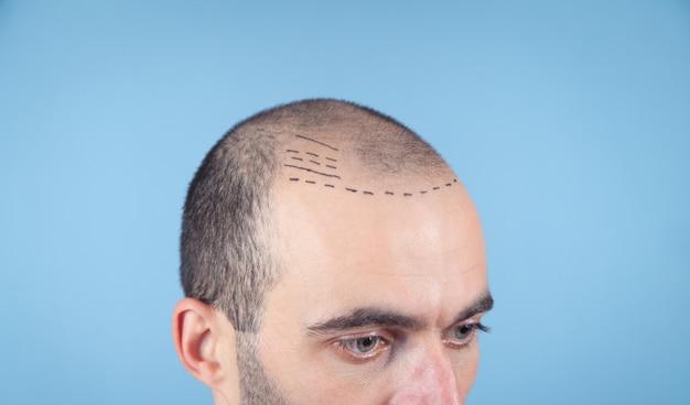 Uomo calvo caucasico. prima del trapianto di capelli
