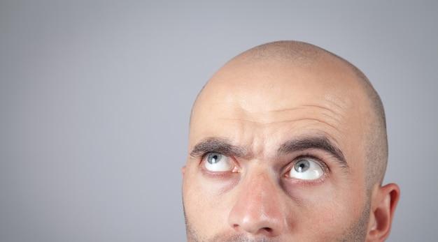 Uomo calvo caucasico in ufficio. concetto di perdita di capelli