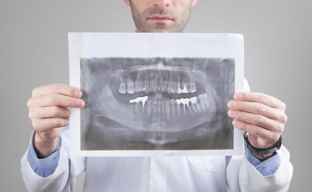 Medico caucasico che tiene all'immagine dei raggi x dei denti.